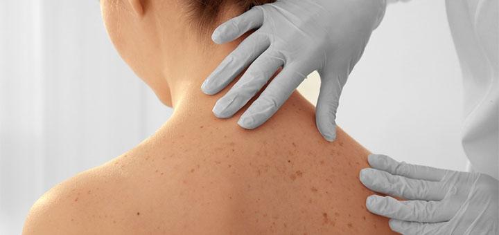 Обследование у дерматолога-онколога в медицинской клинике «Laser Medical»