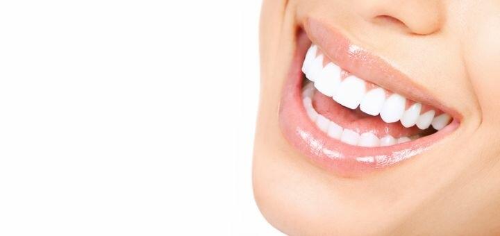 Скидка 50% на вектор-терапию при пародонтите в стоматологии «Dental Beauty Clinic»