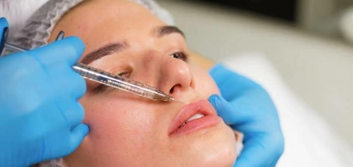 Скидка до 63% на увеличение губ, коррекцию носогубных складок и моделирование скул
