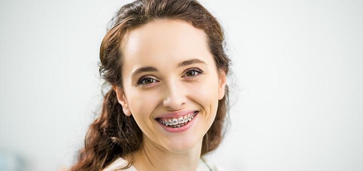 Скидка до 44% на установку брекет-систем в стоматологическом центре «Happy Smile»