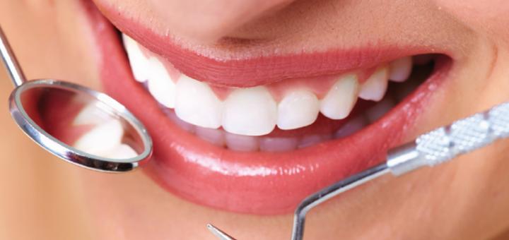 Скидка до 56% на установку композитных виниров в стоматологической клинике «TenDDenT»